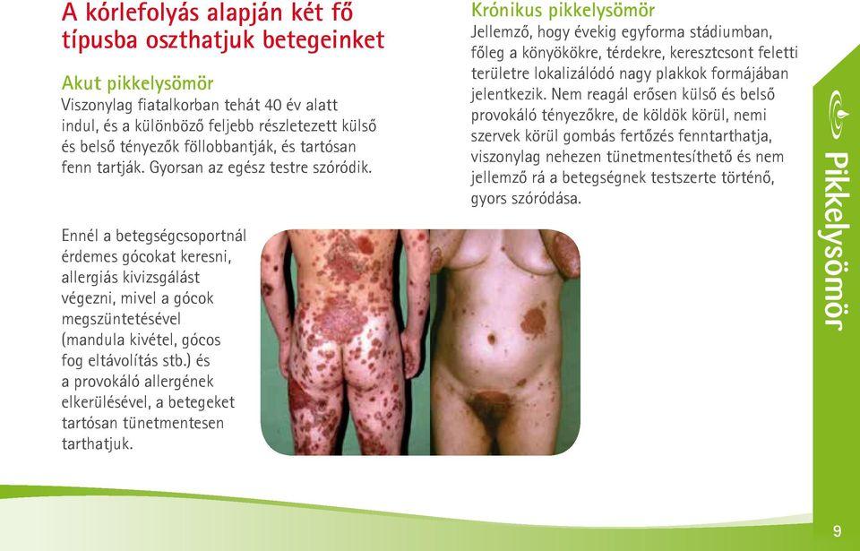 pikkelysömör hepatitis C kezeléssel lehet-e pikkelysömör gyógyítani a korai szakaszban