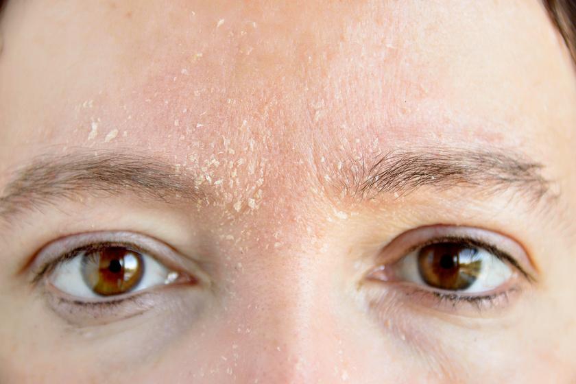 az arc bőrét vörös, száraz foltok borítják)