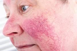 az arcát vörös foltok borítják a naptól)