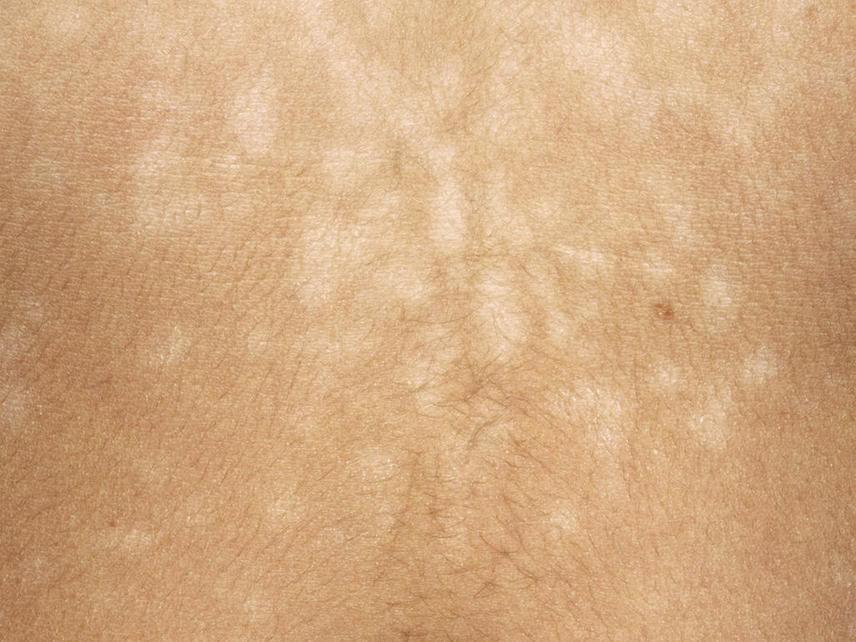 a bőrön lévő hővörös foltokban