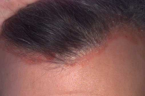 fejbőr psoriasis kezelések