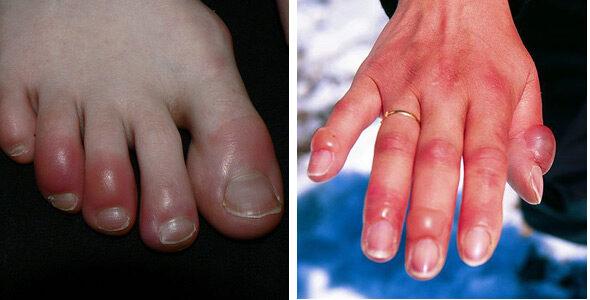 Eucerin®: A bőrről   Psoriasis - tünetek, okok és megoldások