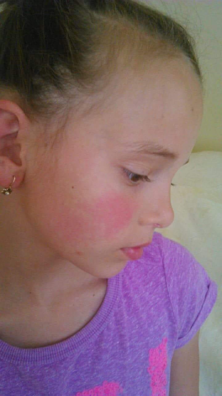vörös foltok az arcon, fejfájás)