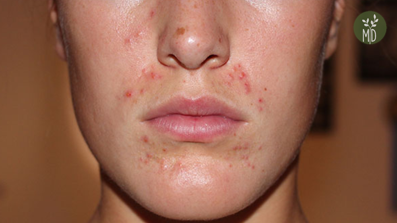 vörös foltok az orr kezelés körül)