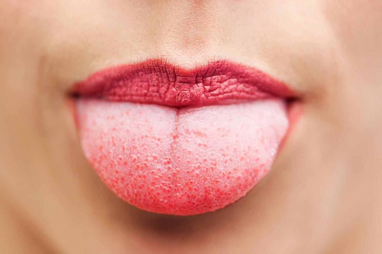 hogyan lehet eltávolítani a vörös foltokat az ajkakon)