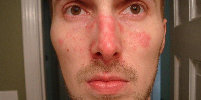 az arcot izgalomtól vörös foltok borítják