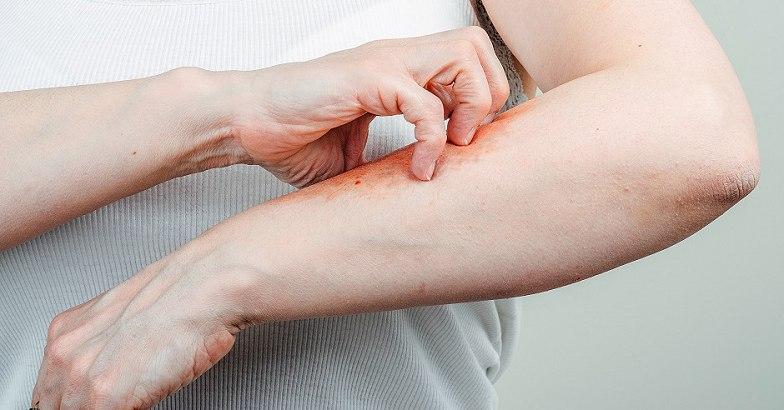 hogyan kell kezelni a kez pikkelysömörét vörös foltok a tenyéren repedések hámlik