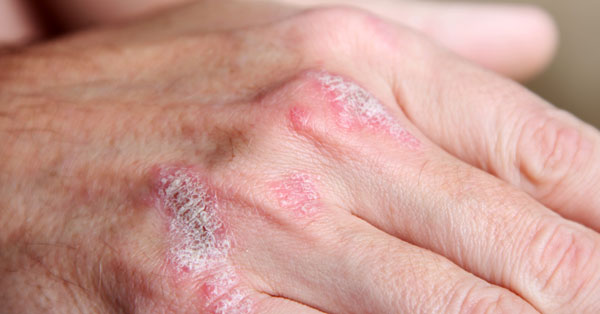 pikkelysömör és fényvédő vörös száraz folt a kezén növekszik