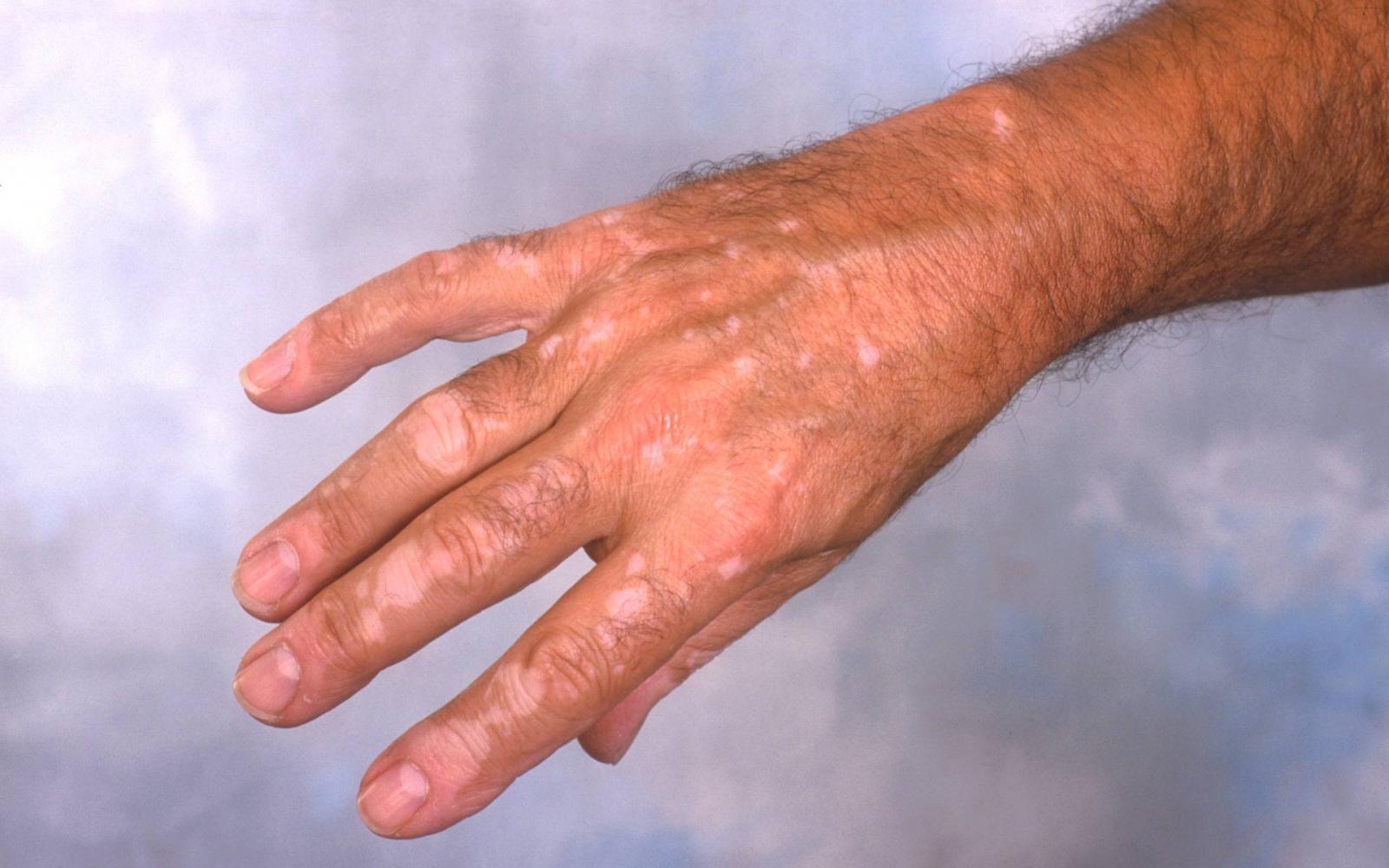 vörös folt a kezén növeli mi az)