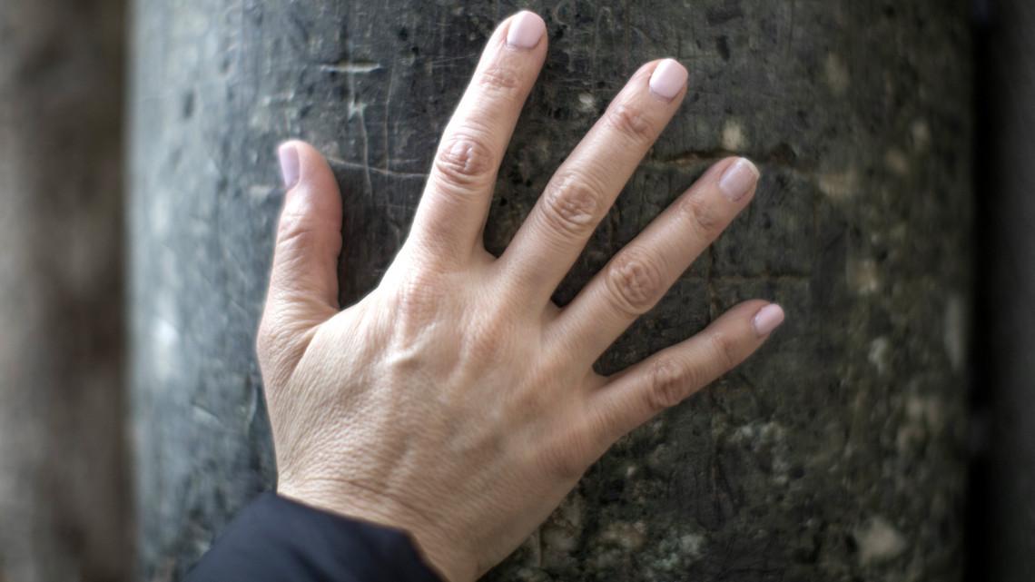 vörös pikkelyes foltok az ujjakon)