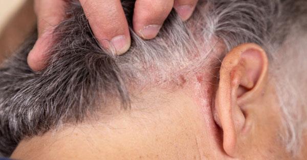pikkelysömör a fej hátsó részén kezelés