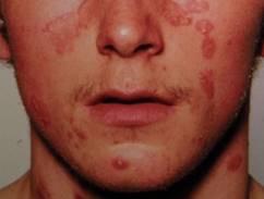 pikkelysömör kezelésére az arcon)