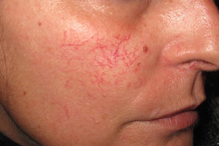 szőrtelenítés után vörös foltok az arcon