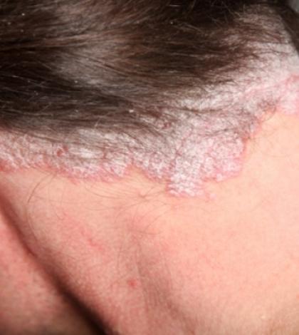 hogyan lehet gyorsan gyógyítani a pikkelysömör fején