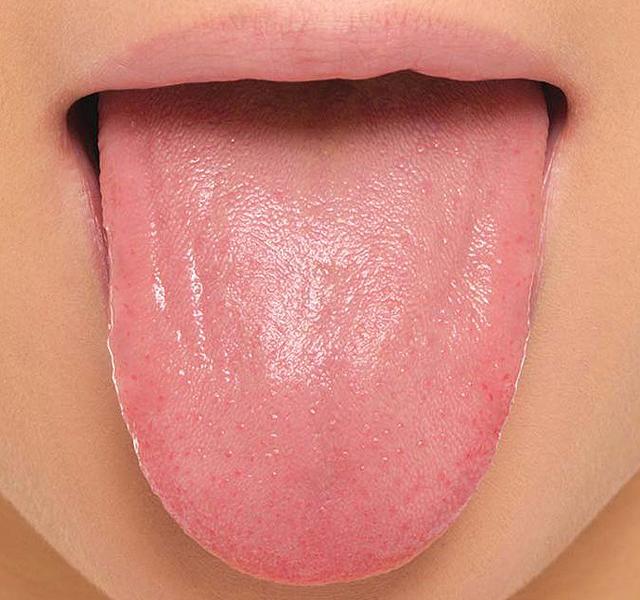 a nyelven vörös foltok kezelése fotó)
