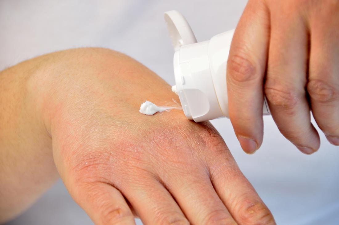 lead psoriasis kezelése