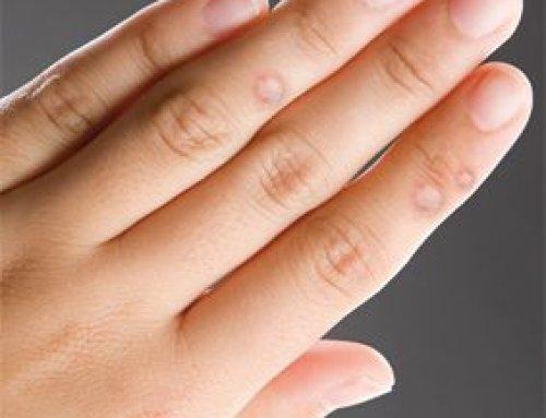 ahonnan hámló bőr az ujjak a nők - Quarantine Q&A