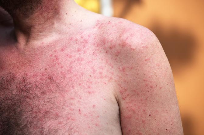 piros kerek foltok viszketés kezelése monoklonlis terpia pikkelysömör kezelésére