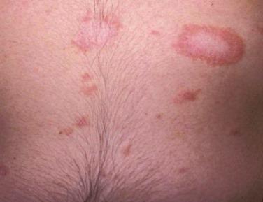 pikkelyes zuzmó tünetek kezelés fotó)