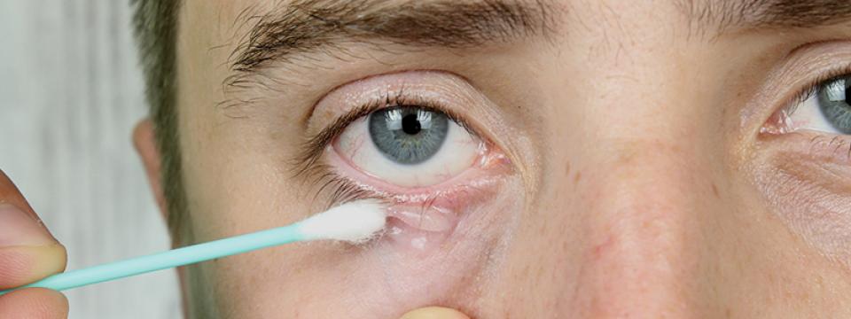 kezelni a szem pikkelysömörét
