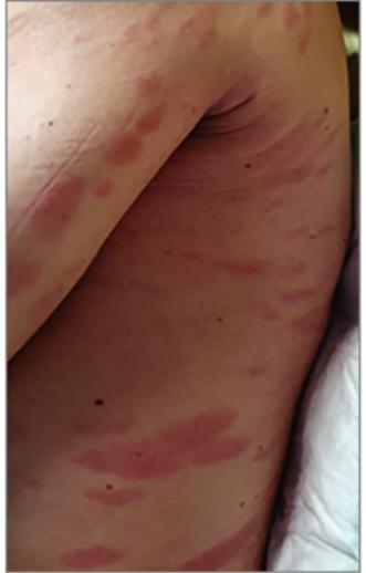 fertőzés vörös foltok a lábakon