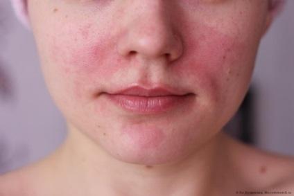 vörös foltok az arcon ivás után maklura pikkelysömör kezelése