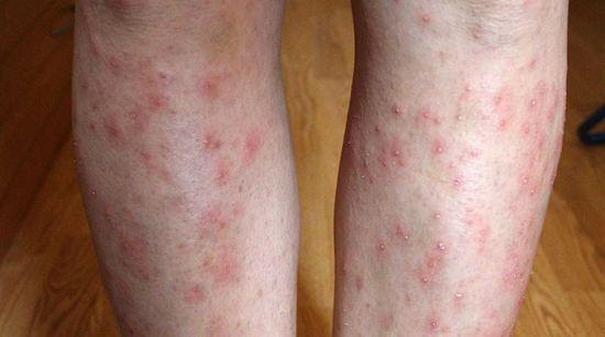 kiterjedt vörös foltok a lábakon)