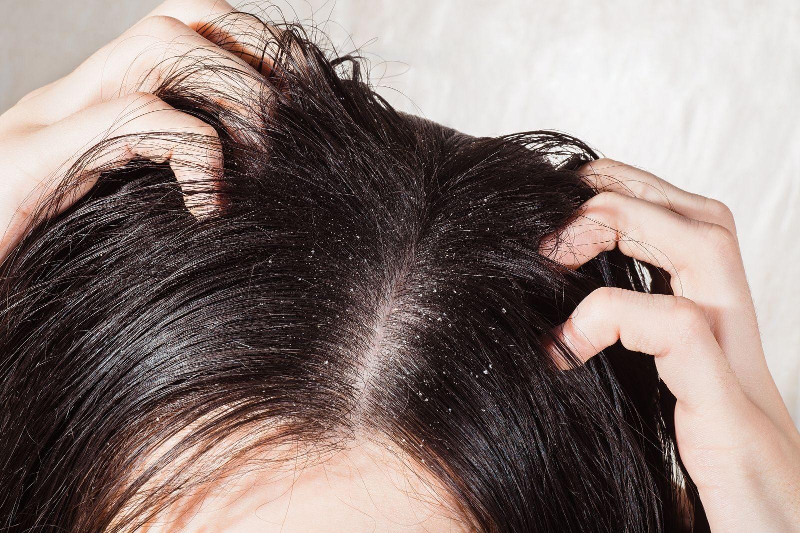 vörös foltok a fejbőrön a haj fotó alatt)