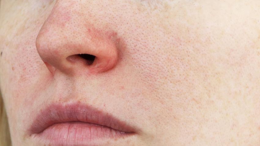 az arcon lévő folt vörös és sziszegő