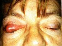 vörös és pikkelyes folt a felső szemhéjon)