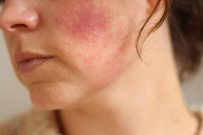 vörös foltok irritáció az arcon)