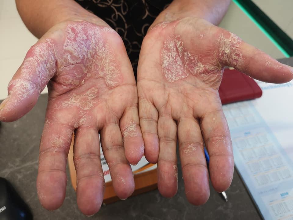 hámló bőr a kezeken és vörös foltok)