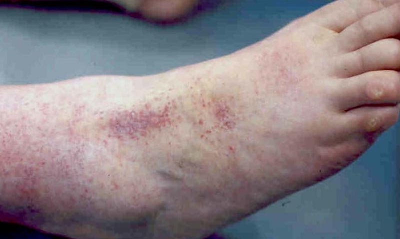 vörös foltok a lábak bőrén cukorbetegségben