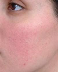 vörös foltok a bőr alatt az arcon)