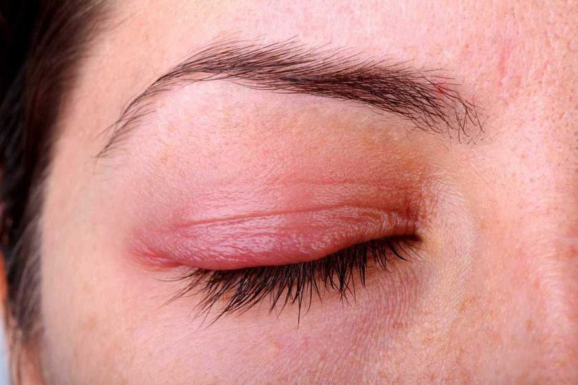 vörös pikkelyes foltok a szemhéjak bőrén