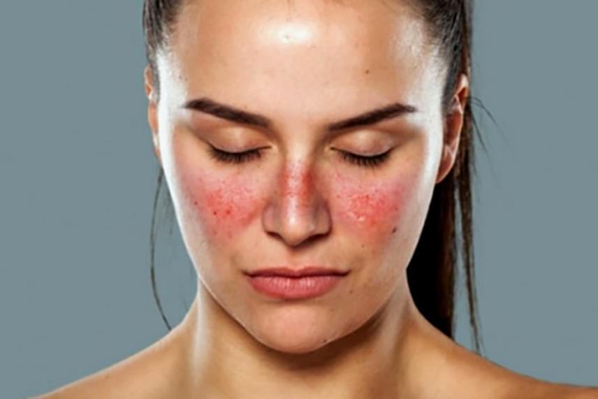 amelyből vörös pelyhes foltok jelennek meg az arcon