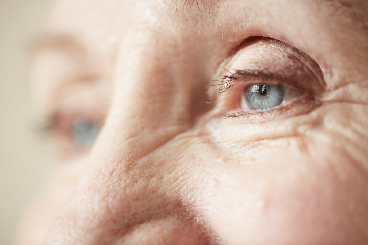 a szem alatt egy vörös folt hámlik le a fotóról