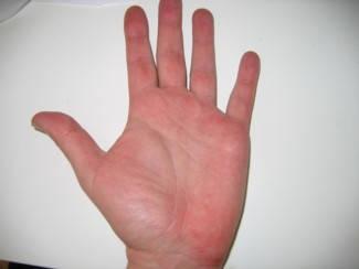 vörös foltok a kezeken és a tenyéren)