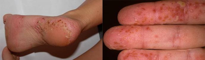pikkelysömör barbera kezels a kezek és a lábak vörös foltok megjelenésének okai