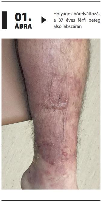 alul a lábakon vörös foltok és viszketés mi ez