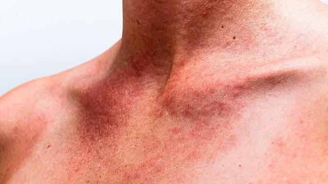 vörös foltok a nyak körül viszketnek duzzadt vörös folt a kézen