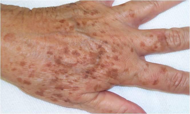 vörös öregségi foltok a bőrön magnézium a pikkelysömör kezelésében
