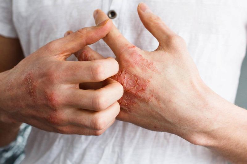 pikkelysömör orvosság tiszta test