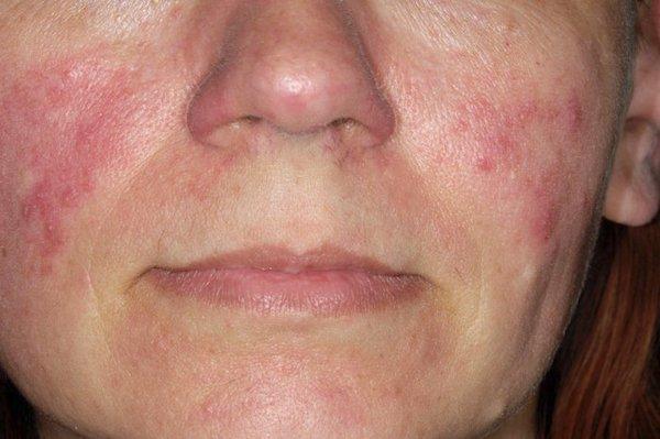 irritáció az arc bőrén vörös foltok formájában)
