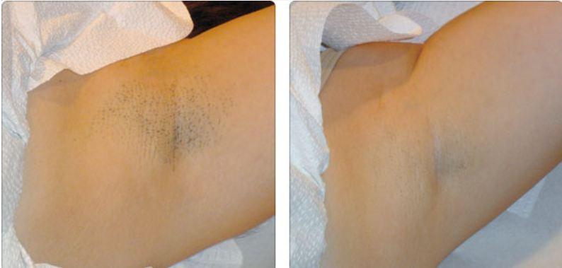 A lábak növekednek: mennyire egyszerű és hatékony a viaszolás?   sunnymodell.hu