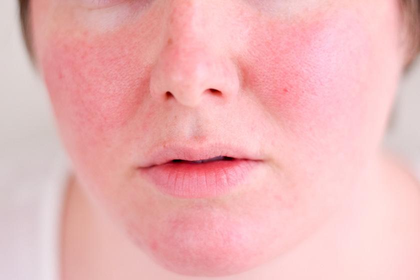 antibiotikumok után vörös foltok az arcon)