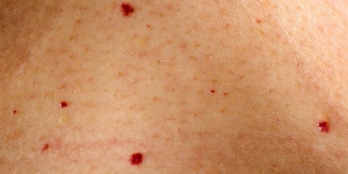 hogyan lehet eltávolítani a vörös foltot a herpeszről)
