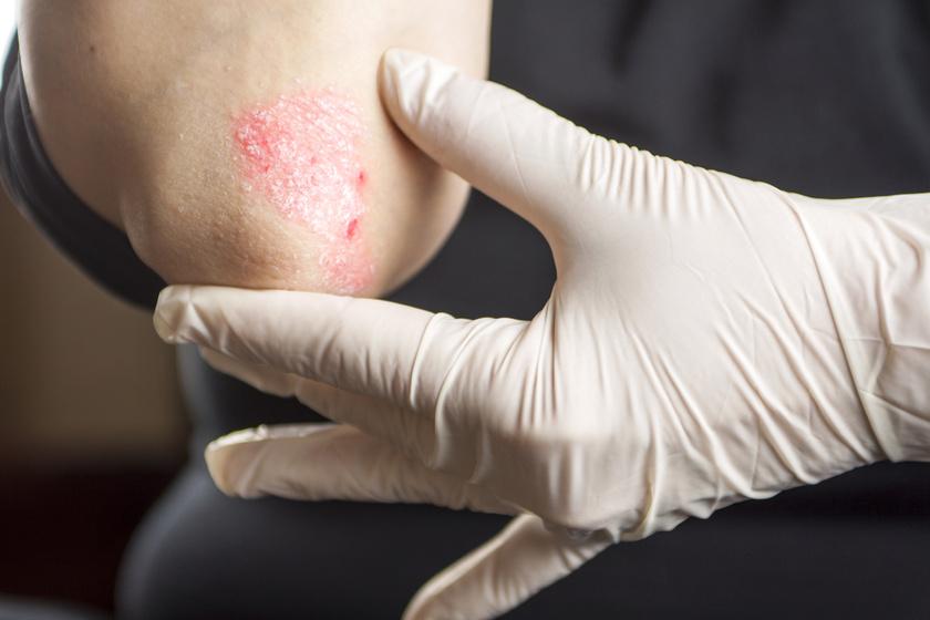 pikkelysömör kezelése aki alul a lábakon vörös foltok és viszketés mi ez