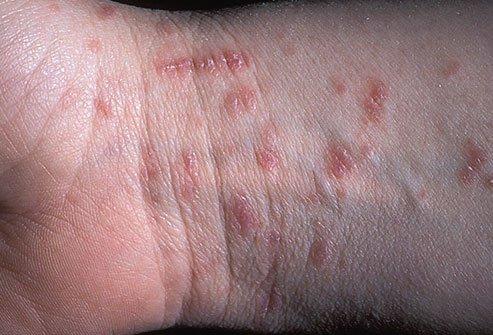 vörös foltok a testen és viszkető kezek új gyógyszer a pikkelysömörhöz