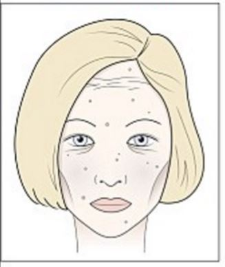 fagyvörös foltok után az arcon)